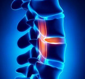 Comment soigner une hernie discale sans operation ?